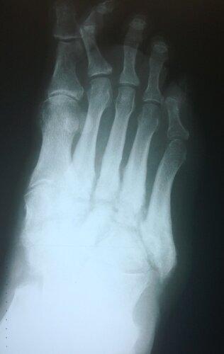 Гнойный артрит | Rentgenolog.Info