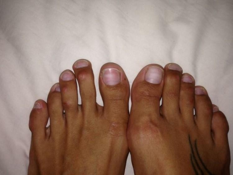 Фото пальцы на ножках у девушки 8 фотография