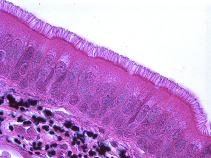 What is Stratified Cuboidal Epithelium with pictures