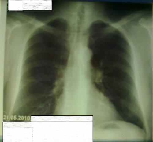 Центральный рак легкого  | Rentgenolog.Info