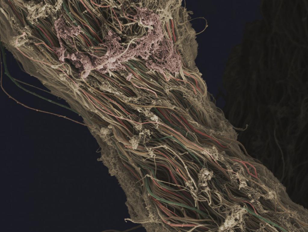 11. Соединительная ткань, удаленная с человеческой коленки во время артроскопической операции. (Anne