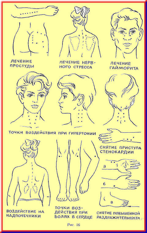 особенность дома точки на теле человека для усыпления фото чем носить кейп