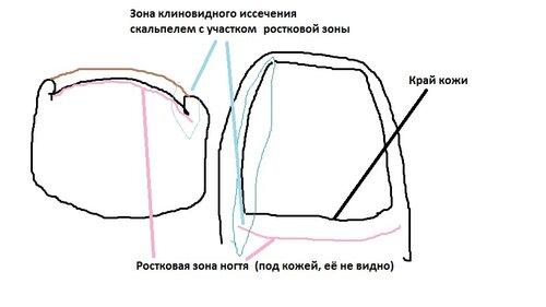 Ростковая зона ногтя