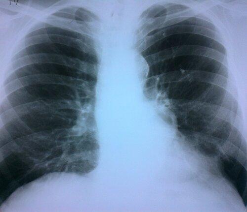 Аневризма грудной аорты