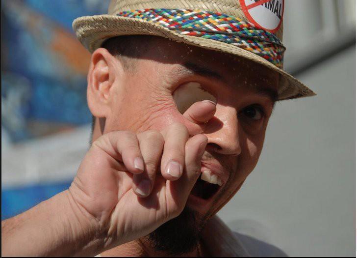 Это Билли Оуэн, и он действительно может высунуть палец из глазницы через рот. Из-за редкой формы ра
