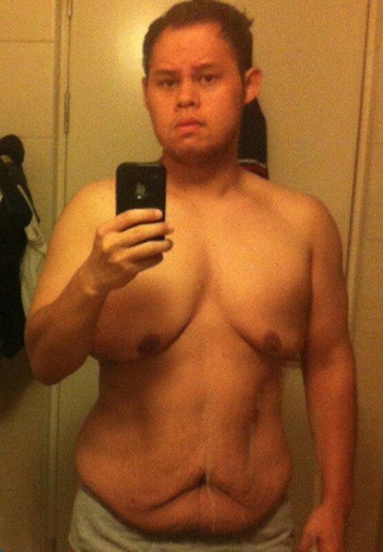 Результат быстрого похудения