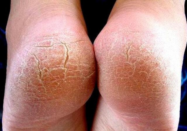 Болезни при грибке ногтей