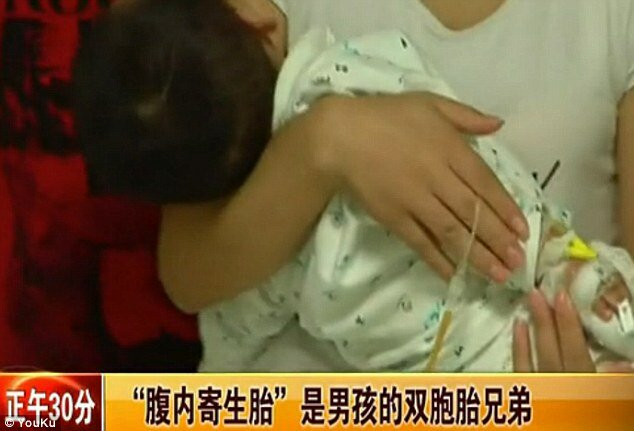 Двухлетний мальчик родил близнеца-паразита