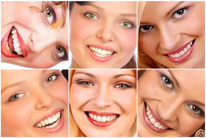 скученность зубов, улыбка