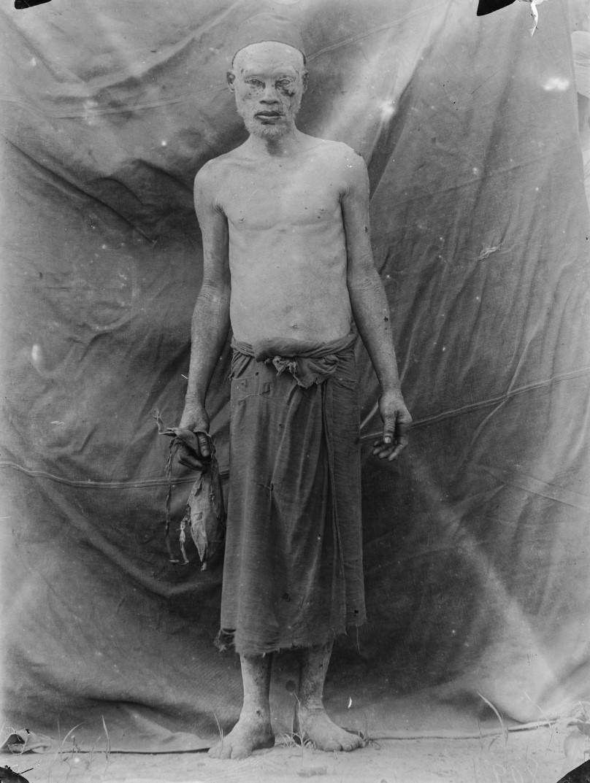 62. Антропометрическое изображение альбиноса
