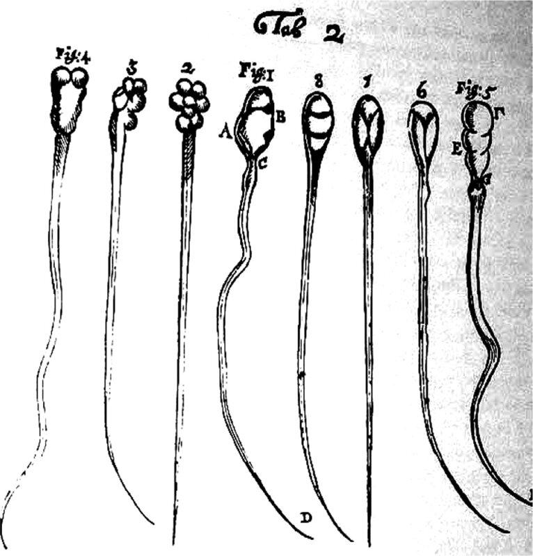 Сперматозоид уроды