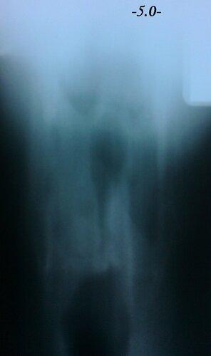 Рак гортани  | Rentgenolog.Info