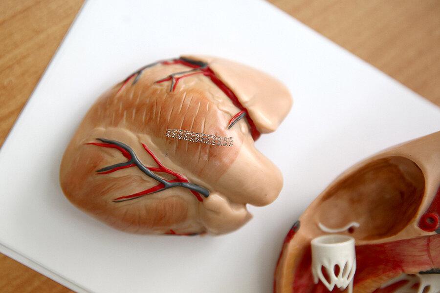 Полостная операция на сердце