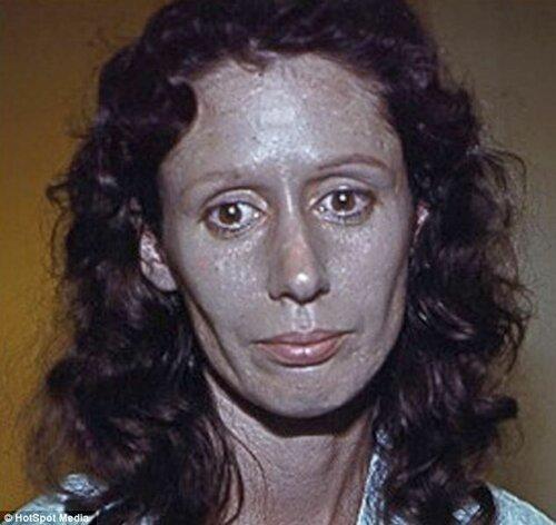 После применения капель для носа женщина покрылась серебряным панцирем