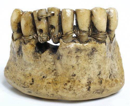 Суровая стоматология в Древнем Риме