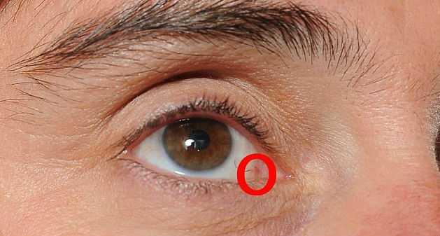 8 ախտանշան, որոնց միջոցով մարդու աչքերը փորձում են տեղեկացնել հիվանդությունների մասին
