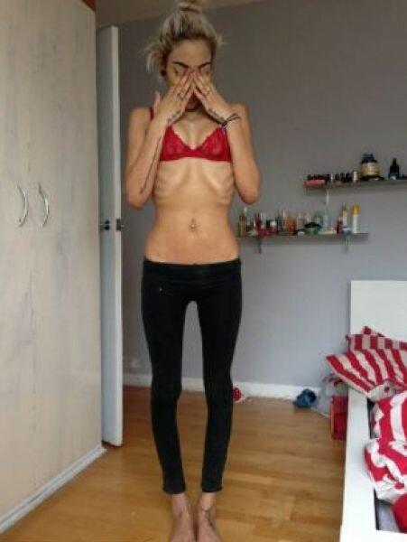 Как выглядит живот беременной анорексички (8 фото)