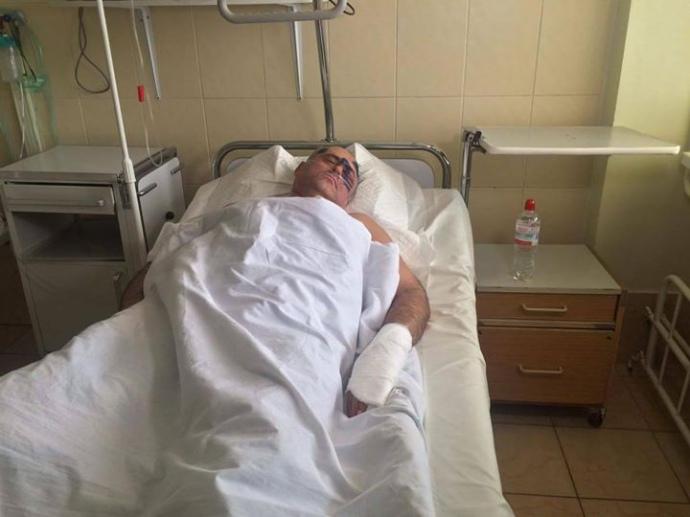 Руководитель Раздольненского райсовета Одесской области доставлен вреанимацию после избиения