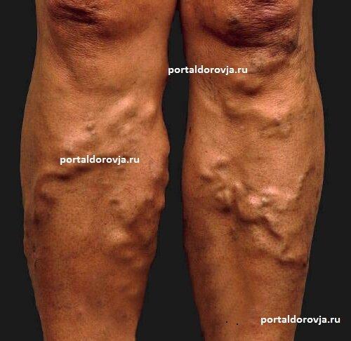 Варикоз органов малого таза симптомы