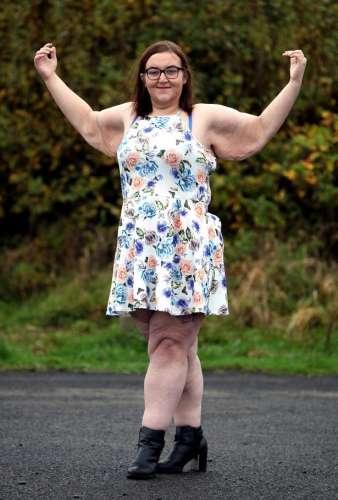 Что будет, если похудеть на 100 килограмм?