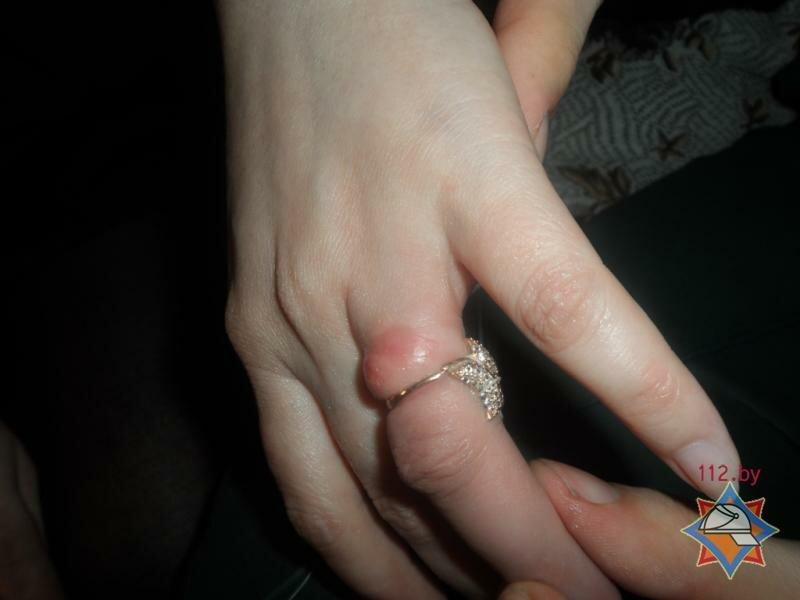 Почему палец под золотым кольцом чернеет