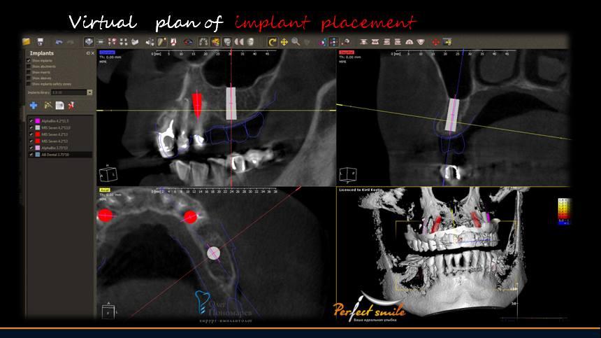Хирургический шаблон в стоматологии