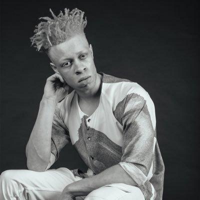Этого парня-альбиноса травили в школе
