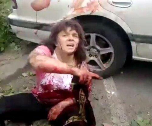 раненые в Луганске