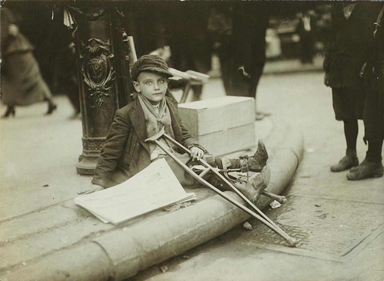 Ребенок-инвалид. 1918