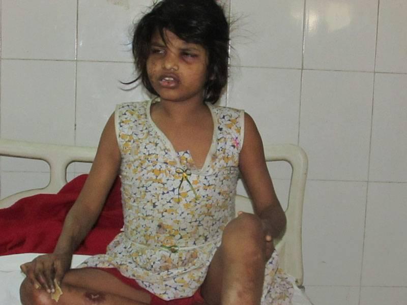 В джунглях Индии нашли девочку, воспитанную обезьянами