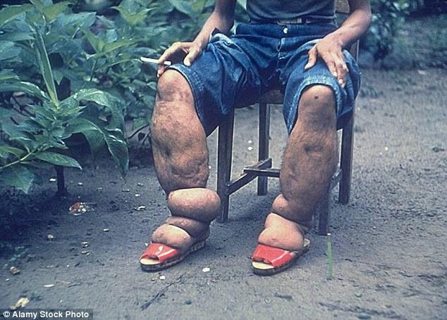 Возбудители инфекции распространены в Африке, Центральной и Южной Америке, в Южной Азии и даже на ос