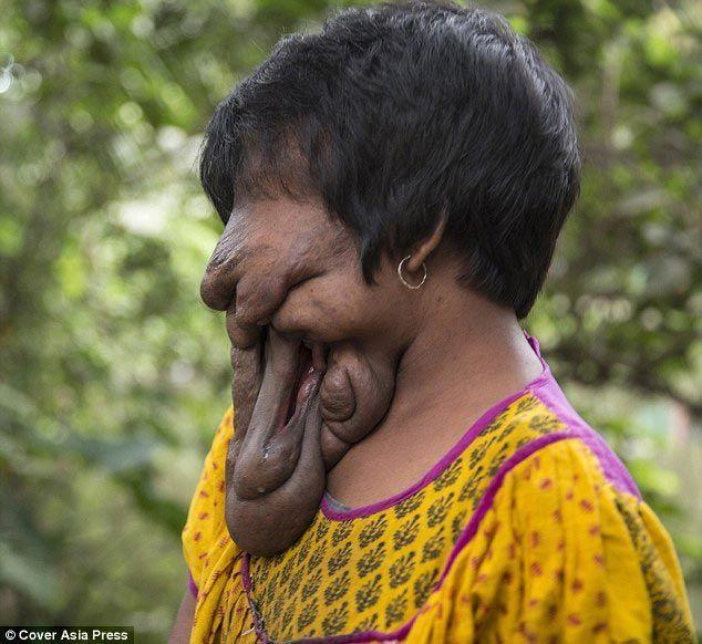 1. Несмотря на то, что всю свою сознательную жизнь эта индийская девушка прожила «без лица», она ник