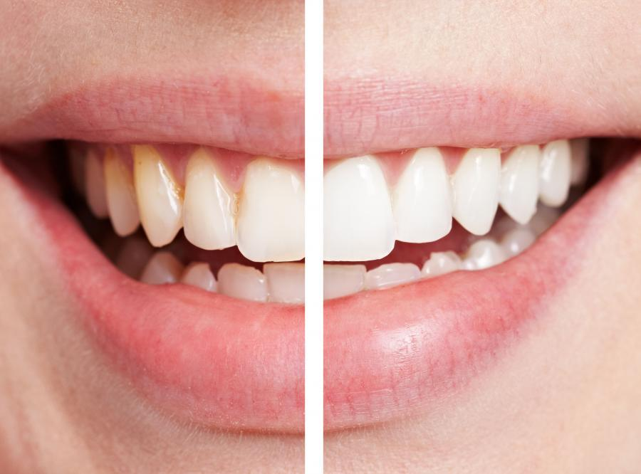 8. Совет женщинам Оптически «отбелить» зубы поможет правильно подобранная губная помада. В этом случ