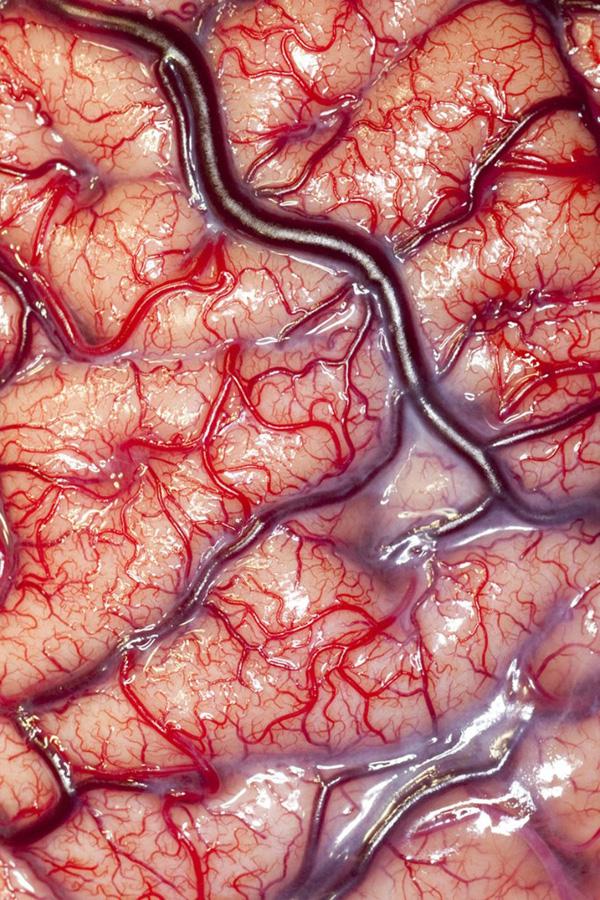 9. Поверхность человеческого мозга эпилептического больного во всей своей красе – со всеми артериями