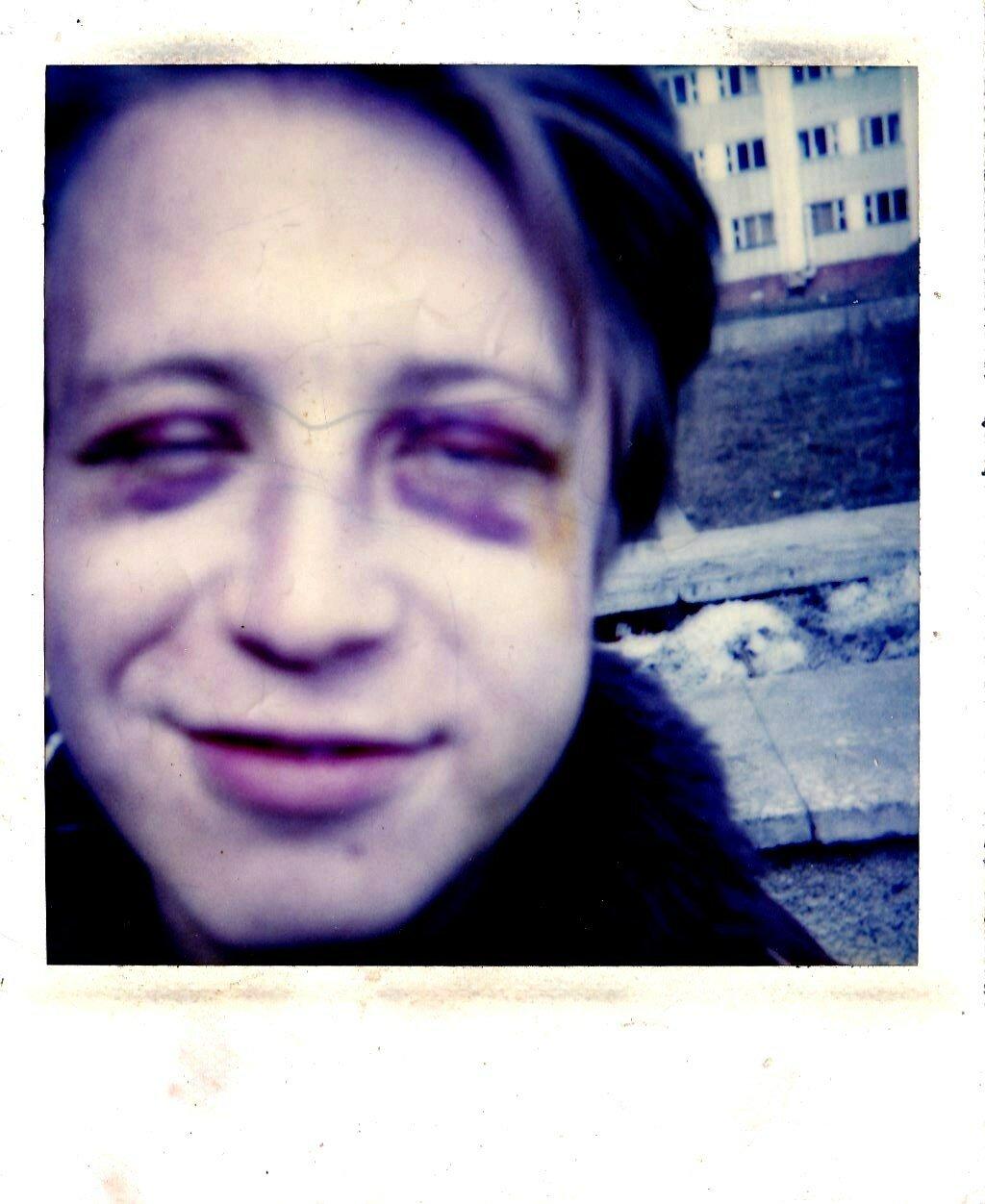 1993-1994. Алексей «Рыба» Рыбаков возле больницы в Юбилейном после неудачного падения в лестничный пролет