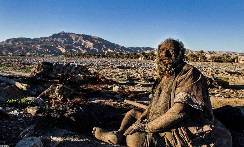 Человек, который не мылся 60 лет (7 фото)