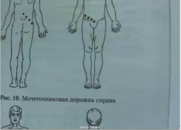 Лекарства для лечения артрита голеностопного сустава