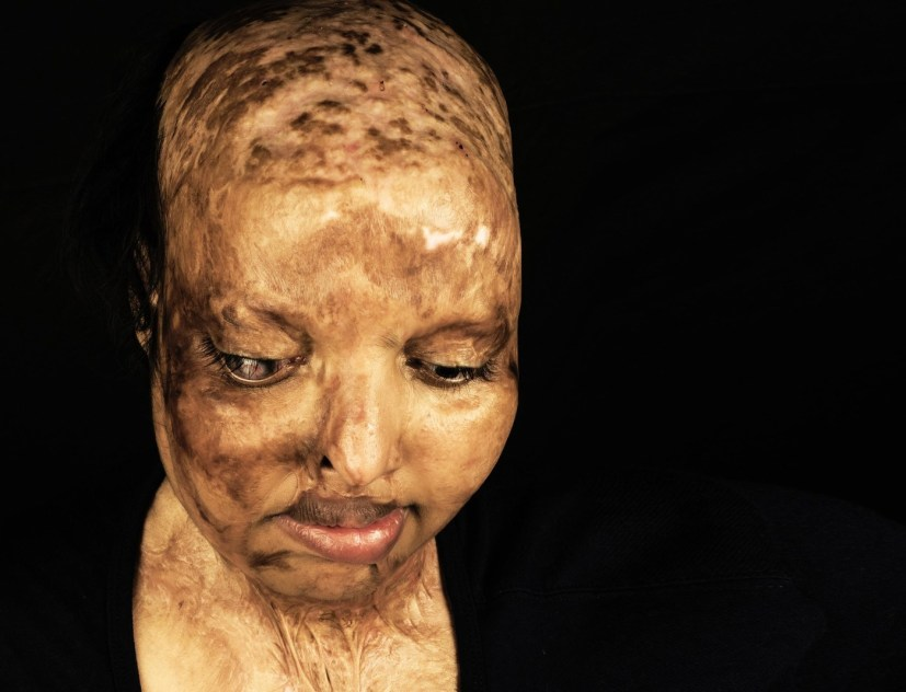 Ослепшая в 15 лет жертва кислотной атаки встретила свою любовь в больнице, где проходила реабилитацию