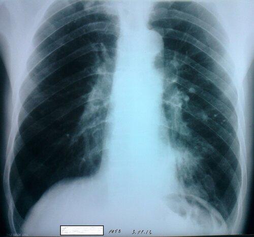 Внебольничная нижнедолевая левосторонняя пневмония