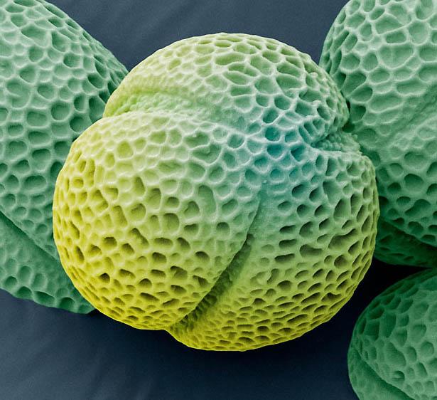 7. Пыльца морозника. (STEVE GSCHMEISSNER / SCIENCE PHOTO LIBRARY / BARCROFT MEDIA)