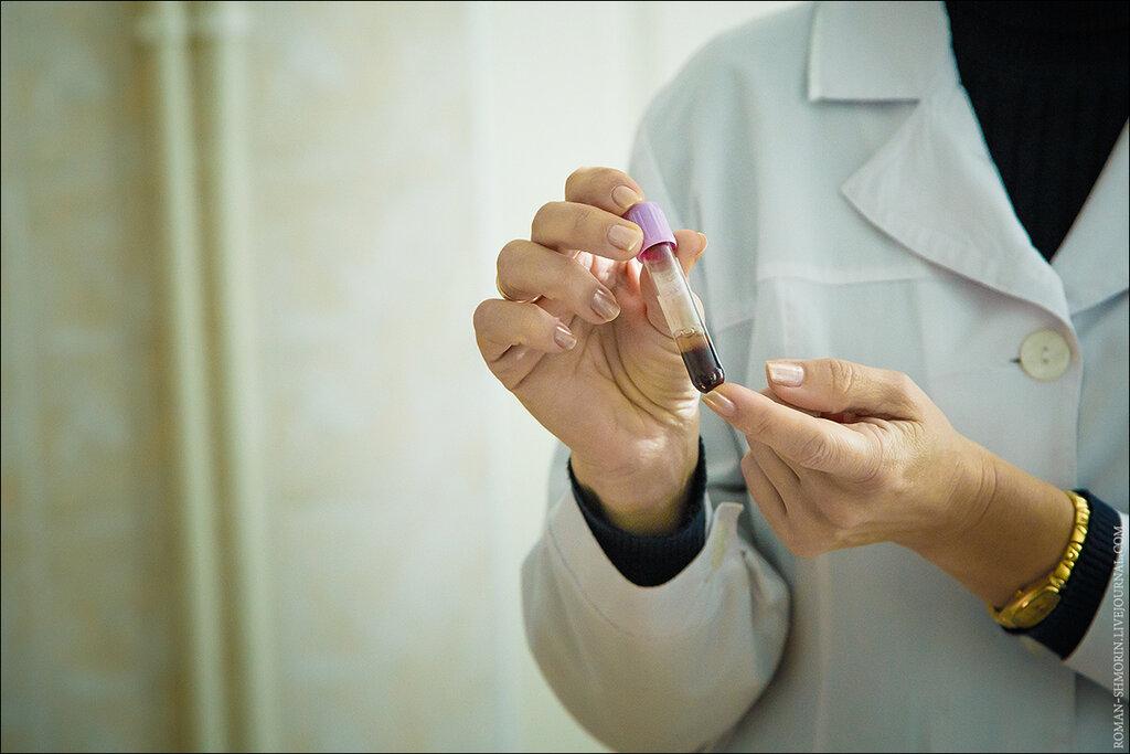 Допустимый уровень сахара в крови для женщин за 60 лет