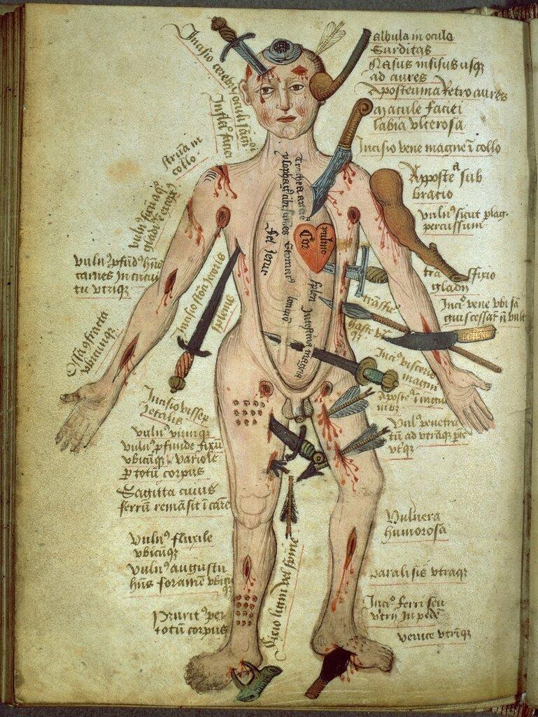 Wound Man image from Claudius (Pseudo) Galen's Anathomia