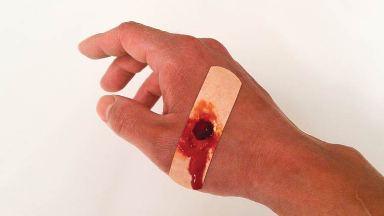 Boo-Boos – Are these band-aids to realistic? (6 pics)