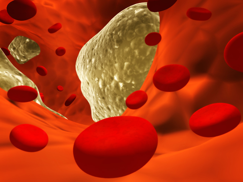 Высокий холестерин передается по наследству