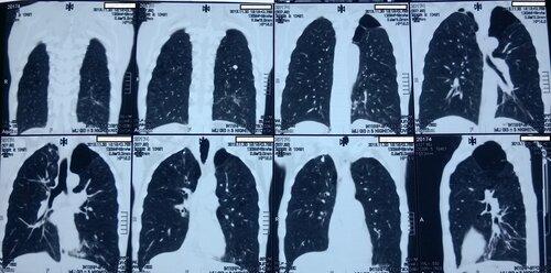 Внебольничная нижнедолевая левосторонняя пневмония | Rentgenolog.Info