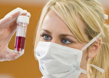 Учёные обнаружили причину СПИДа на молекулярном уровне