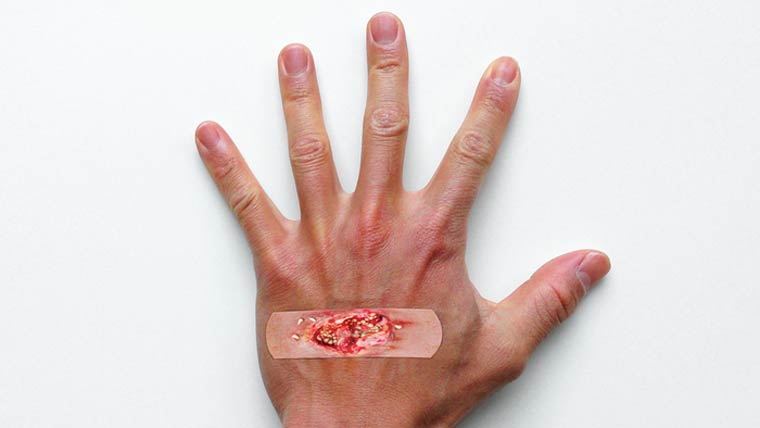 Boo-Boos – Are these band-aids to realistic?