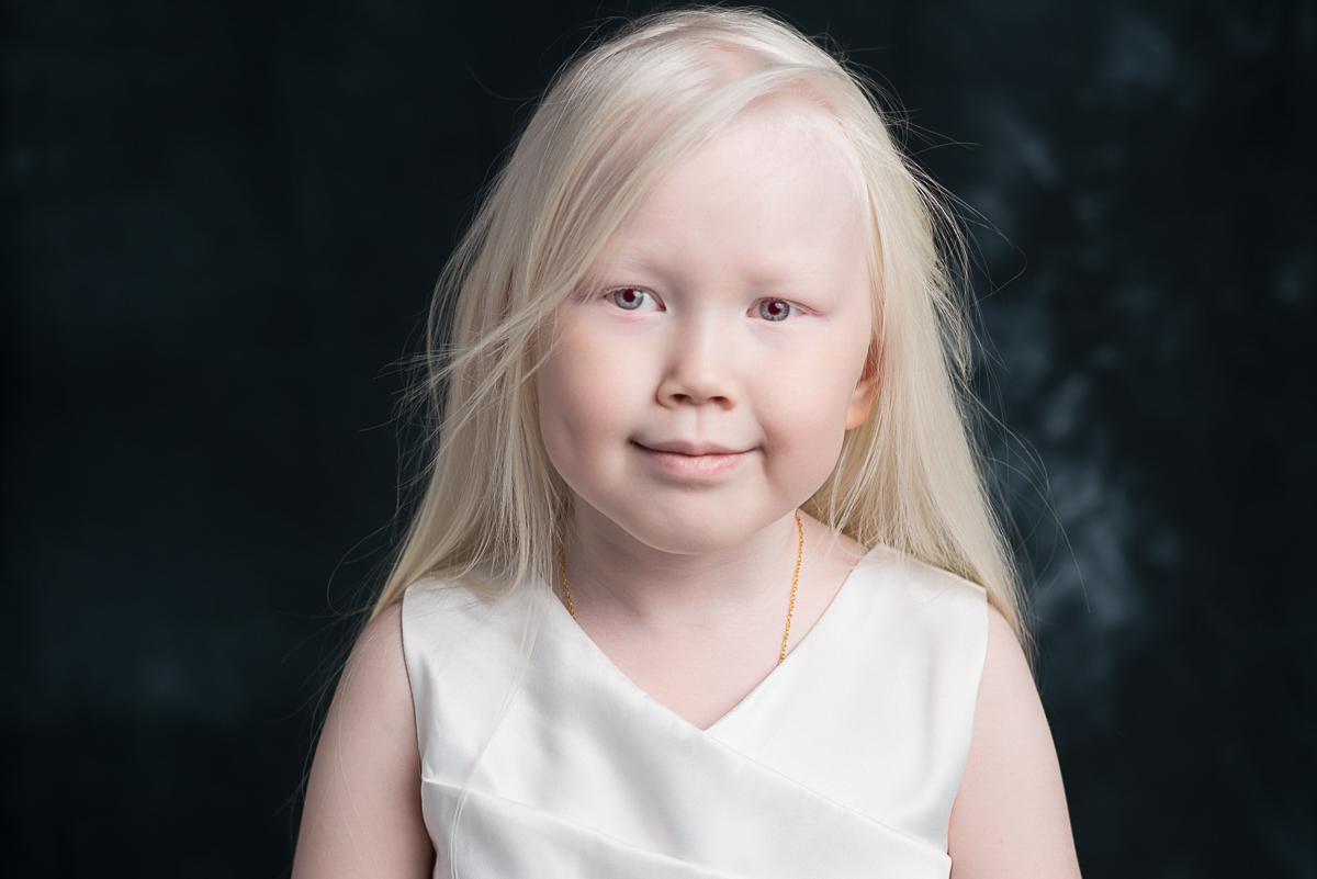Рассказывает тетя девочки, Ирина: «Нарияна обычный ребенок, просто беленькая. Она с малых лет очень