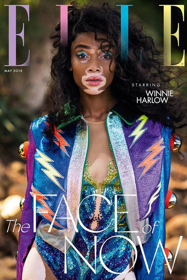 Winnie Harlow is the Cover Star of Elle UK May 2018 Issue
