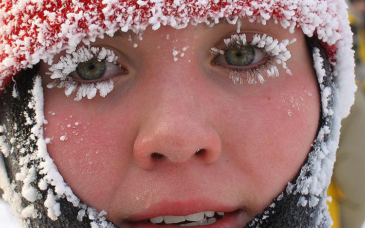 В российской столице  62 человека пострадали отсильных холодов